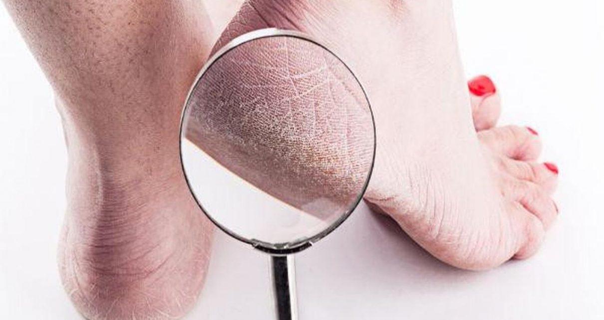 7 Perubahan Pada Tubuh yang Cerminkan Kondisi Kesehatan Anda